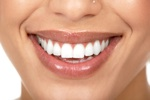 Coupons for White Teeth